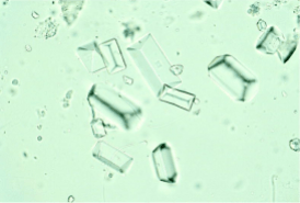 figure-1a-struvite-crystals-in-urine-sediment