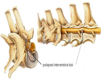 Figure 2. Illustration of intervertebral disk herniation. From Hill's Pet Nutrition, from the Atlas of Veterinary Clinical Anatomy, http://www.hillsvet.com/practice-management/vertebrae-intervertebral-disk-disease.html