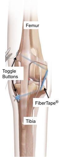 Figure 3 - Tightrope® www.arthrexsystems.com