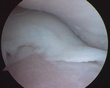 Elbow Dysplasia Cartilage Loss