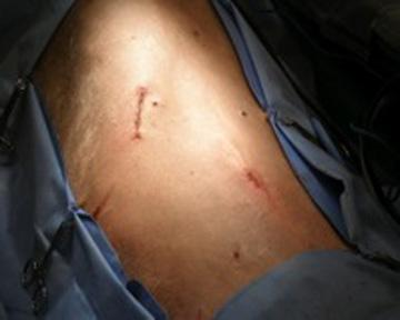Figure 6. Image showing the two small incisions from a completed laparoscopic gastropexy.