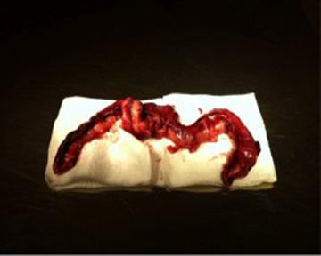 Perforated segment of intestine removed from a dog with a foreign body.