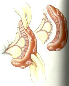Diagram depicting removal of the spleen